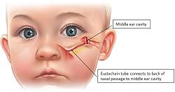 10 Penyebab Demam Pada Bayi dan Cara Mengatasinya ...