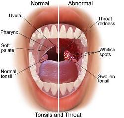 Tonsilitis (radang amandel)